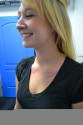 Picture of Chest Dermals (Microdermals). Mystical Body Piercing Shop Modesto, CA